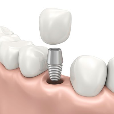 Kirrawee Dental Implants